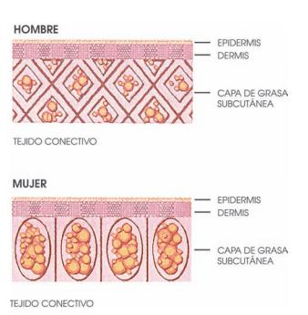 tejido celulitis